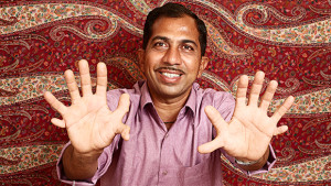 A 28 ujjú indiai asztalos Guinness rekorder lett!