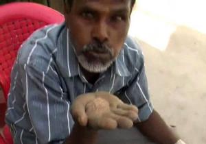 A férfi, aki 25 éve homokot eszik