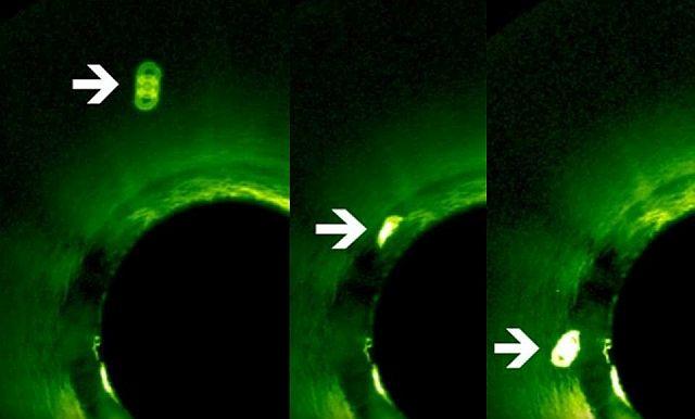 Jupiter méretű objektum súrolta a Nap felszínét